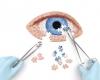 Muitas doenças nos olhos podem ter diagnóstico precoce e serem prevenidas